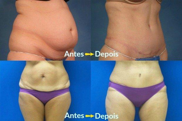 Antes y después de la abdominoplastia - Fotos: Sociedad Estadounidense de Cirujanos Plásticos / Kent Hasen y Rudolf Thompson