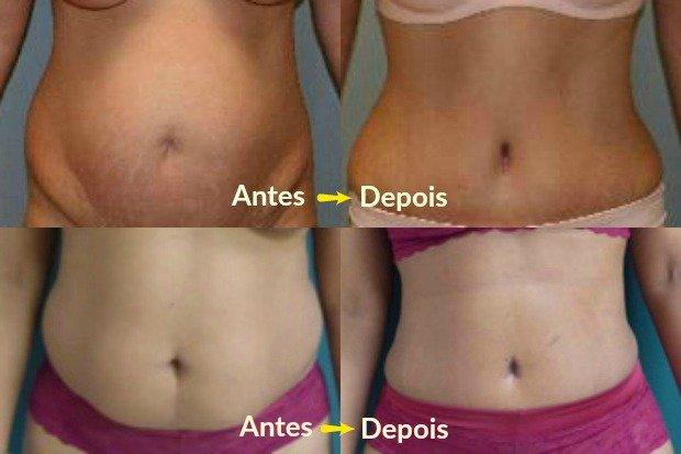 Antes y después de la abdominoplastia - Fotos: Sociedad Americana de Cirujanos Plásticos / Meegan Grunber y M; Vicent Makhlouf