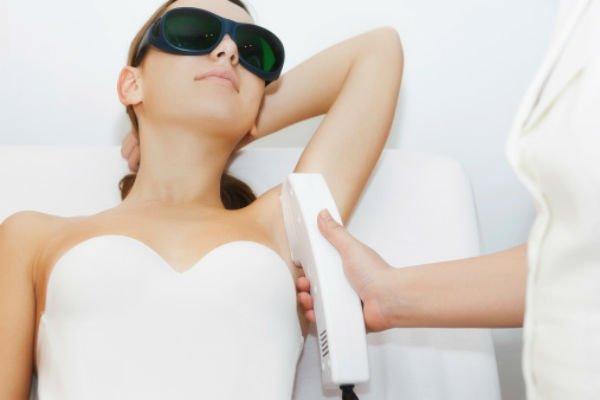 Se pueden usar varios tipos de láser para la depilación - Foto: Getty Images