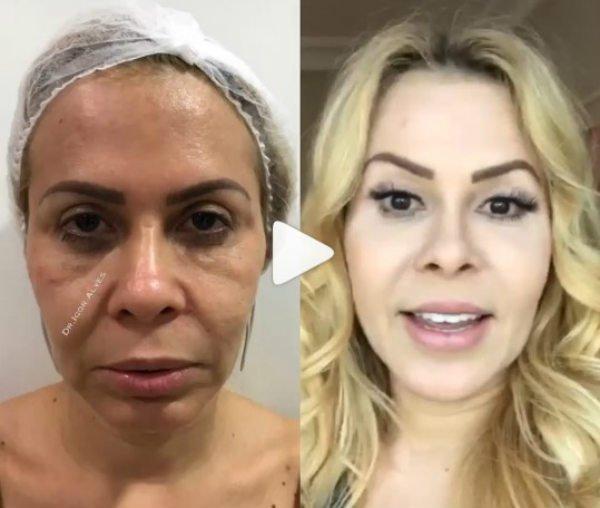 La armonización facial de Joelma.