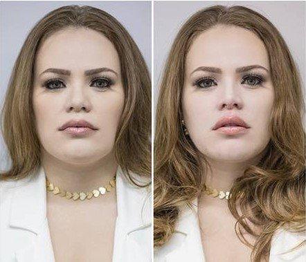 Armonización facial de Paulinha Leitte