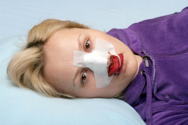 Postoperatorio de rinoplastia - Foto: Getty Images