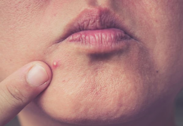 Acné con pápulas inflamadas y pus (grado 2) - Foto: Shutterstock