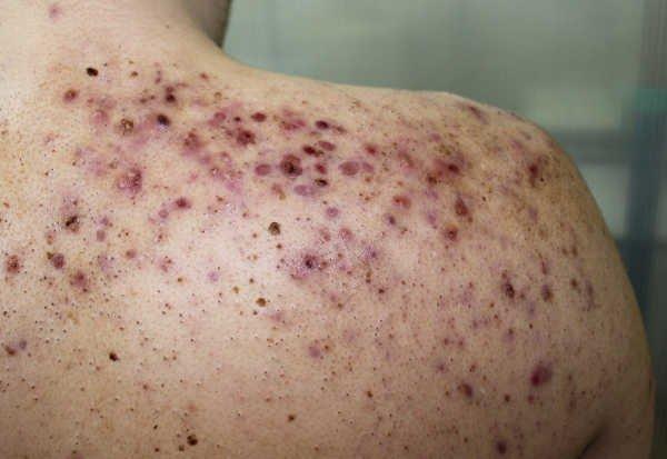 Conglobata del acné (grado 4) - Foto: Shutterstock