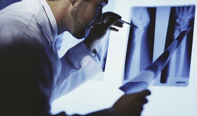 médico mirando una radiografía - Foto: Getty Images