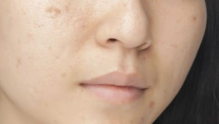 8 tratamientos caseros para eliminar las espinillas y sus imperfecciones