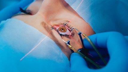 Cirugía de miopía: ¿cuándo se indica y cuáles son los beneficios de hacerlo?