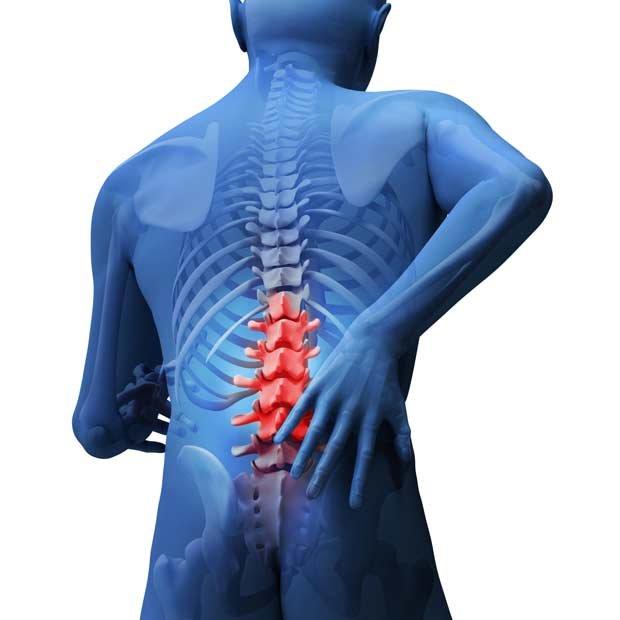 Dolor de espalda - Foto Getty Images
