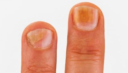 Las manchas oscuras en las uñas pueden significar hematomas o incluso tumores.