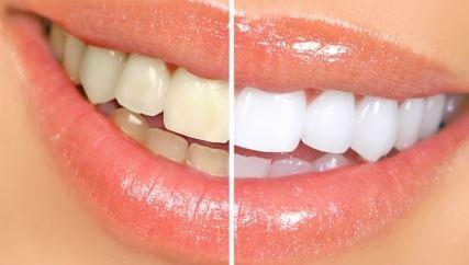 Lentes de contacto dentales: todo lo que necesita saber sobre esta técnica