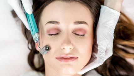Microagujas: ¿Cuál es el procedimiento y para qué sirve?
