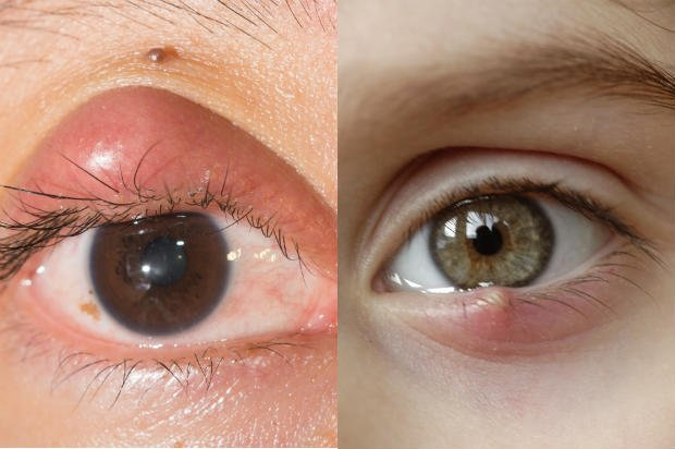 Ojos manchados - Foto: Shutterstock